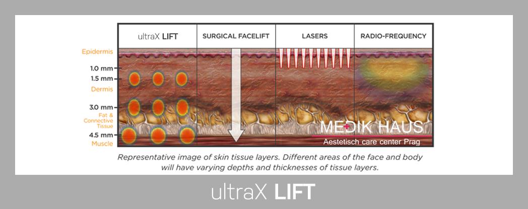 Šetrný a neinvazivní lifting UltraX lift.