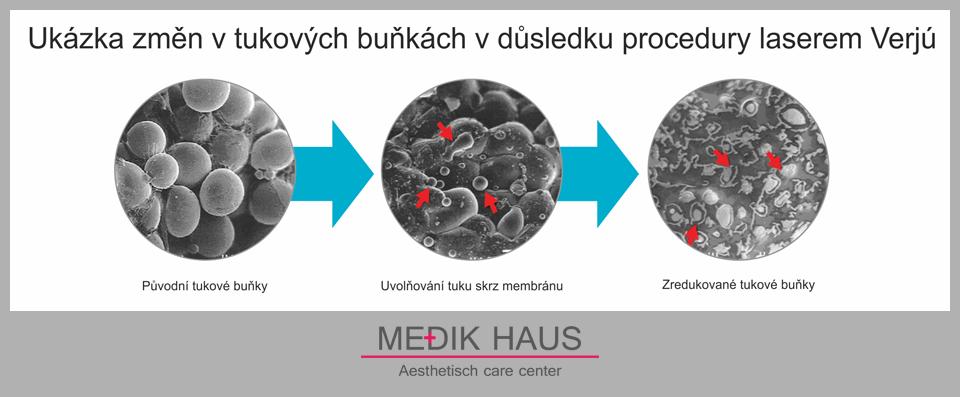 Dosáhněte redukce tukových buněk s laserovou liposukcí verjú.