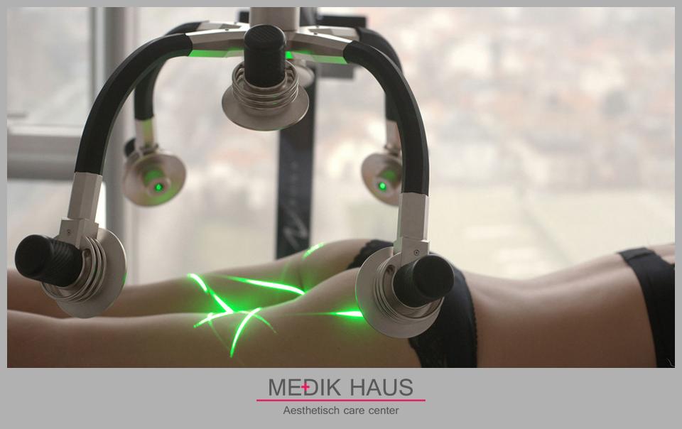 Moderní a bezpečná. To je laserová liposukce verjú.