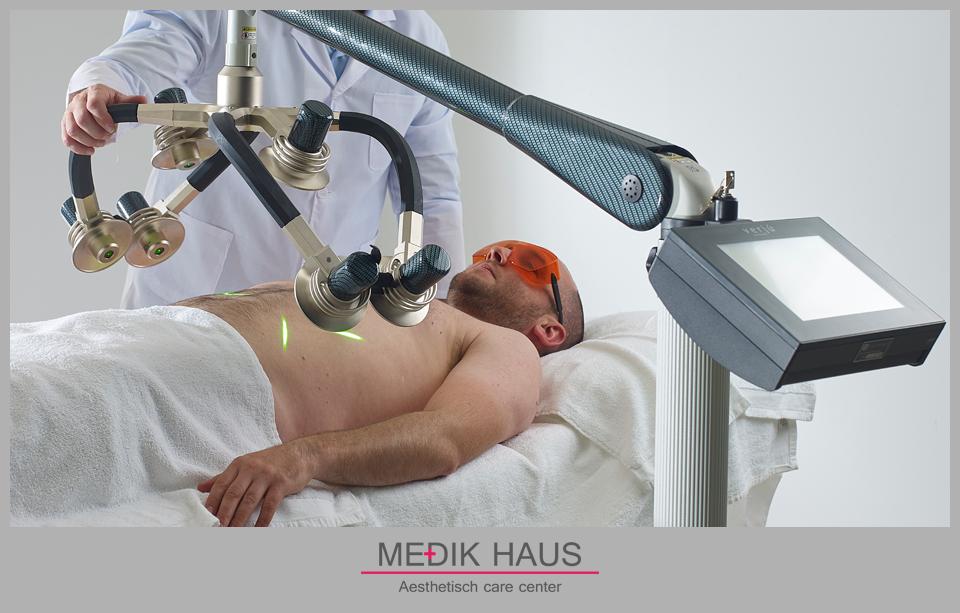 laserová liposukce verjú je bezbolestná a neinvazivní