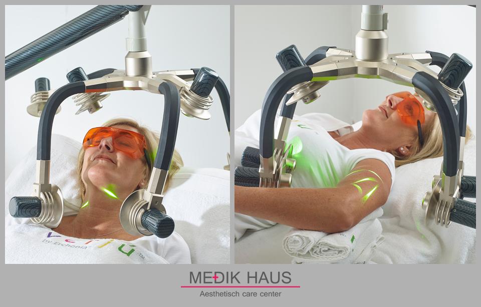 laserová liposukce verjú je moderní a bezbolestná metoda