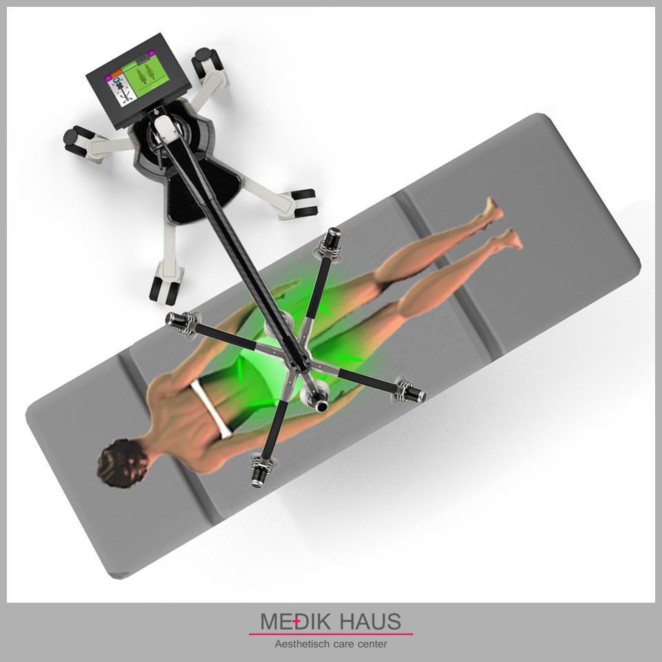 Laserová liposukce verjú je nejmodernější způsob zbavení se tuků.