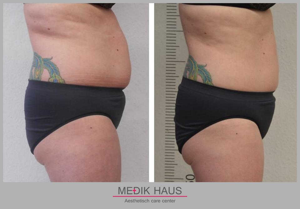 Zchoďte přebytečná kila s laserovou liposukcí verjú.