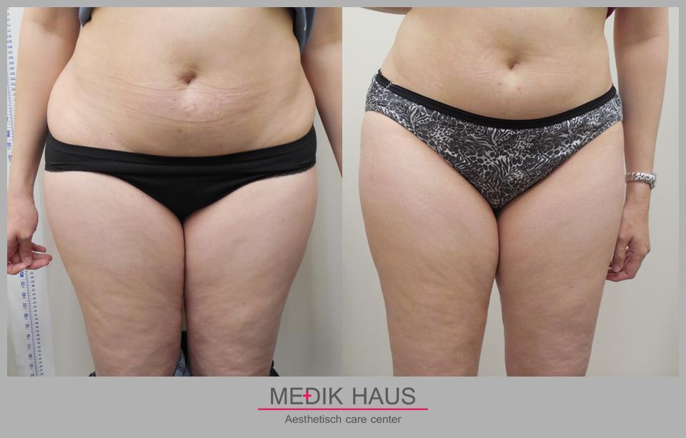 laserová liposukce verjú  má rovnoměrný a 100% efekt.