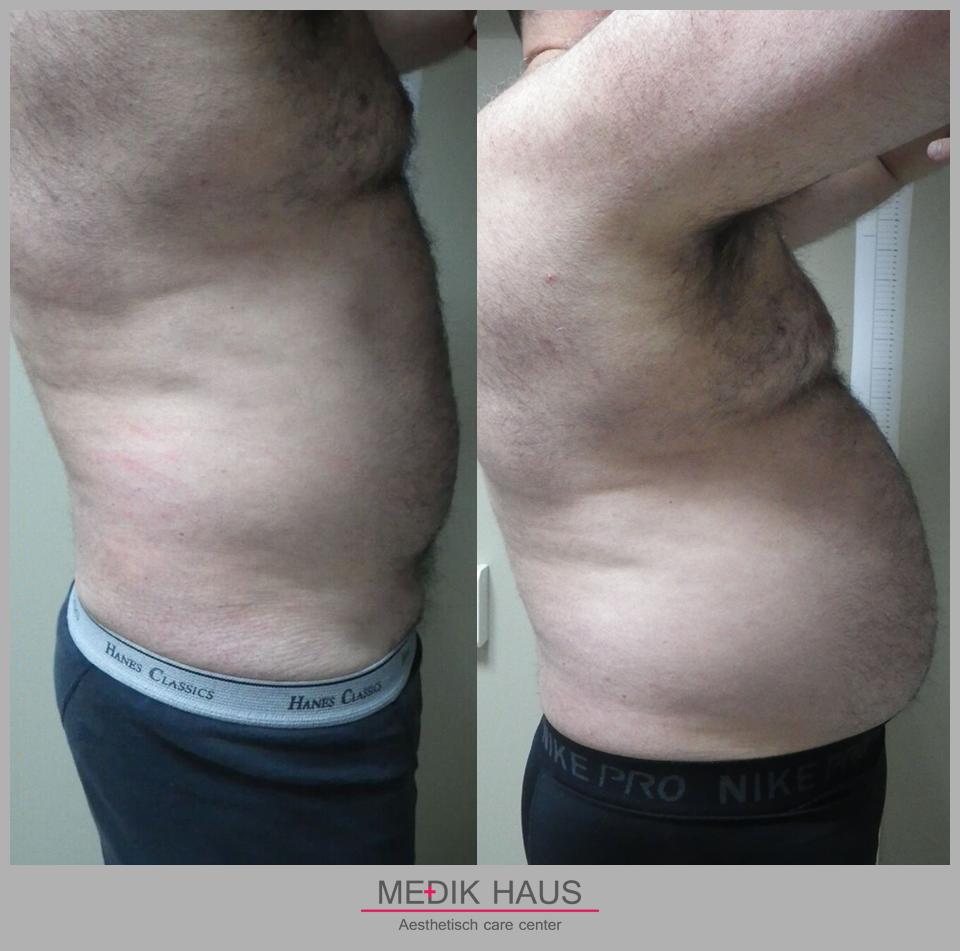 Laserová liposukce verjú má viditelné účinky už po prvním sezení.