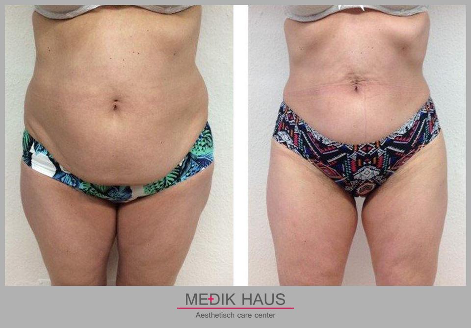 Dopřejte si změnu s laserovou liposukcí verjú.