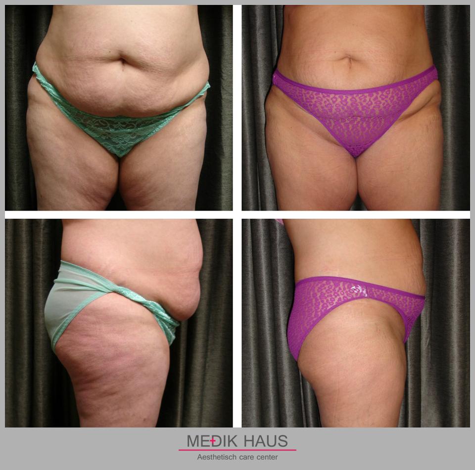 Změna po laserové liposukci verjú je viditelná už po prvním sezení.