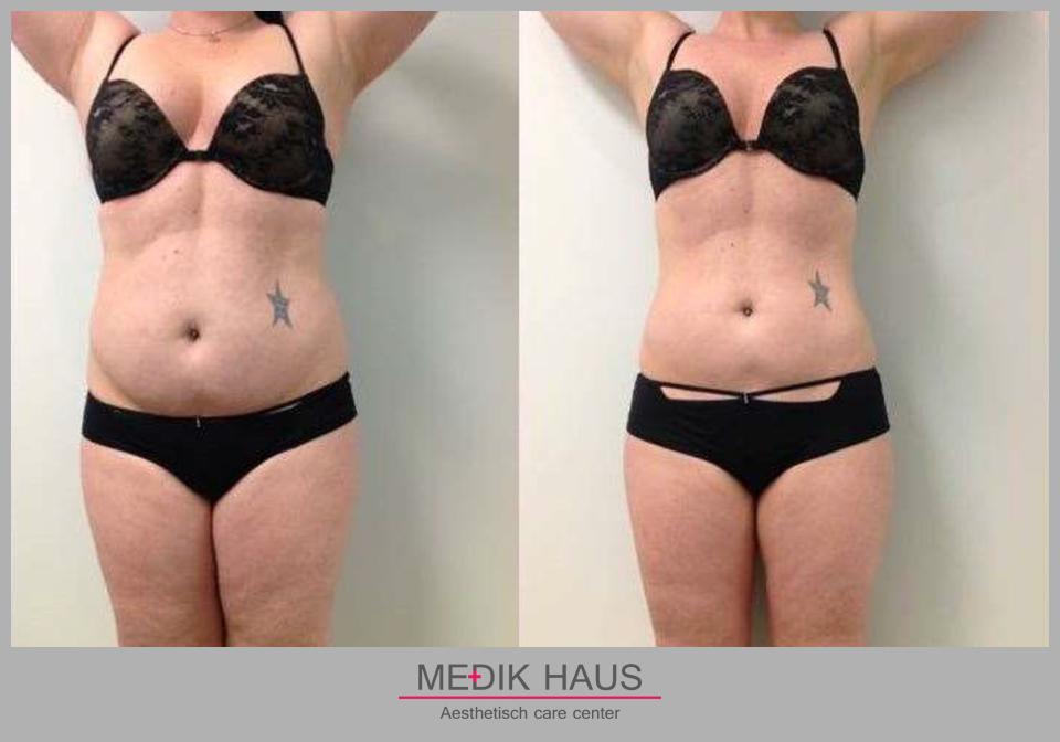 Zažijte reálnou změnu s laserovou liposukcí verjú.