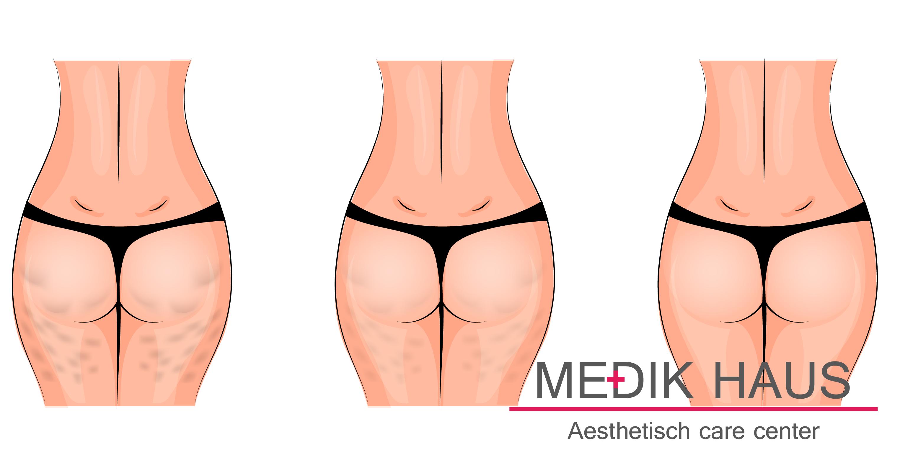 odstranění celulitidy s ameson cellulite probíhá bezbolestně a neinvazivně