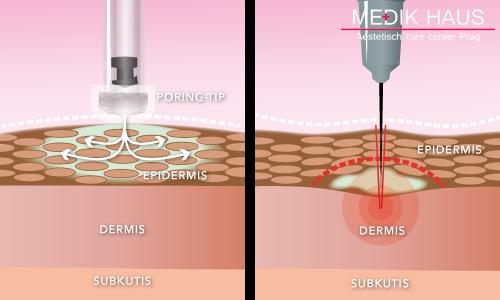 Injekční lipolýza je špičková procedura, kde používáme jen nejkvalitnější materiály.